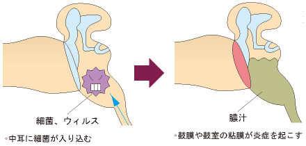 急性中耳炎の説明画像1