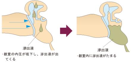 滲出性中耳炎の説明画像1